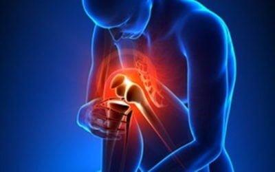Recurrent  patellar dislocation